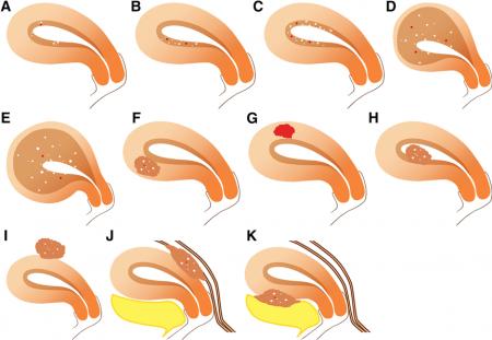 Classification of Adenomyosis