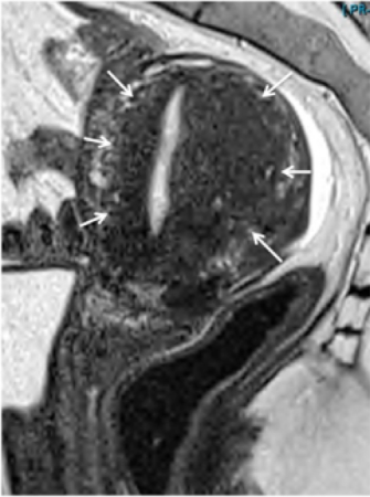 MRI Adenomyosis Junctional Zone Thickening